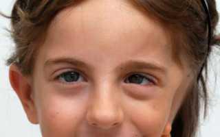 Синдром Гольденхара – что это такое? Болезнь Гольденхара – причины возникновения, симптомы, лечение
