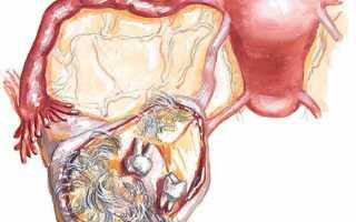 Киста яичника – симптомы у женщин. Фолликулярная, эндометриоидная, дермоидная киста яичника – лечение