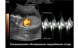 Как по сердцебиению определить пол ребенка, и можно ли определить пол ребенка по сердцебиению?