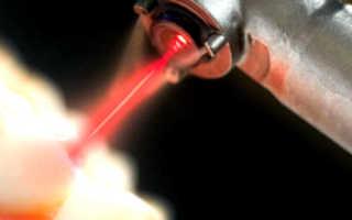 Лечение зубов лазером, озоном, методом Icon, фотополимерные пломбы. Лечение кариеса под общим наркозом