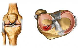Травма мениска коленного сустава, повреждение заднего рога медиального мениска, внутреннего мениска – симптомы, степени, лечение