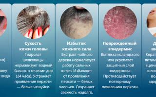 Чешется голова и выпадают волосы, зуд кожи головы и выпадение волос – причины, что делать?