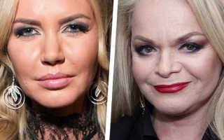 Нос как у Рианны: назван главный тренд пластической хирургии на 2020 год