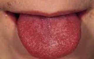 Скарлатина – диагностика, анализ крови при скарлатине. Признаки скарлатины – как проявляется болезнь?