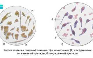Плоский эпителий в моче – норма у женщин. Как правильно сдавать анализ мочи?