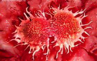 Тромбоциты – норма у женщин по возрасту, таблица. Тромбоциты понижены, повышены в крови у женщин – что это значит?