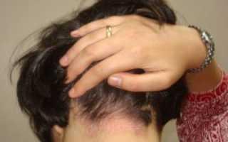 Псориаз на голове – что такое псориаз волосистой части головы (фото), чем лечить? Шампунь от псориаза, новое в лечении