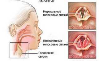 Как лечить ларингит острый и хронический? Лечение ларингита — ингаляции, антибиотики при ларингите