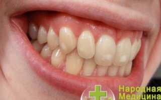Гранулема – что это такое? Гранулема зуба, кольцевидная, пиогенная, эозинофильная гранулема – лечение