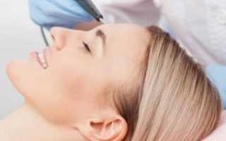 Фракционный фототермолиз – что это такое? Фраксель – лазерная терапия кожи лица
