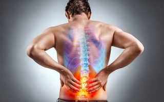 Болит поясница – что делать? Почему болит поясница? Упражнения, мазь от боли в пояснице